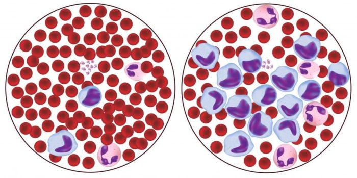 Лимфоциты в крови повышены