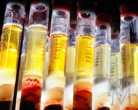 Уровень соэ при онкологии у женщин