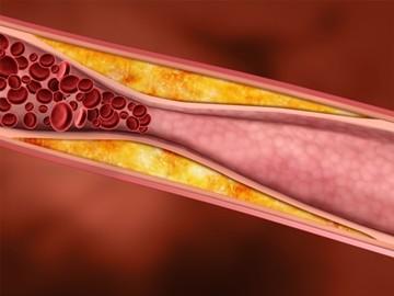 Что это значит билирубин? Норма,повышенный билирубина в крови