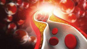 Снижение холестерина народными средствами быстро, чем снизить холестерин в крови используя народными средствами