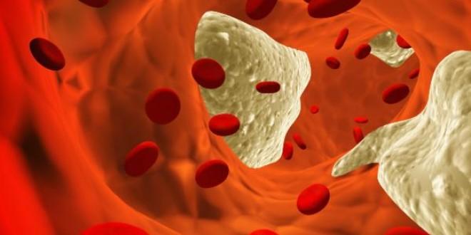 Повышен антистрептолизин в крови что это значит