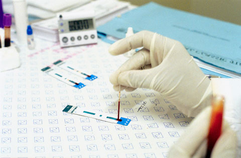 Анализ крови на хгч: анализ крови на беременность, что это такое, расшифровка