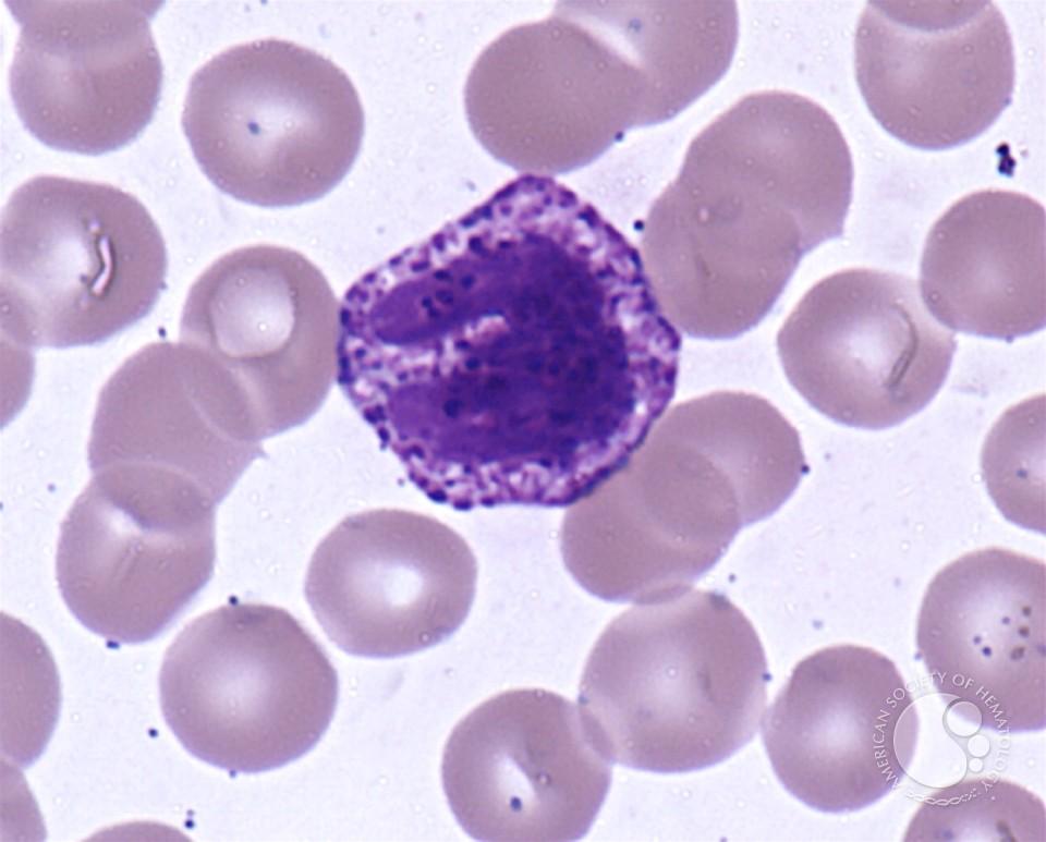 Базофилы в крови - повышенные базофилы, норма у ребенка