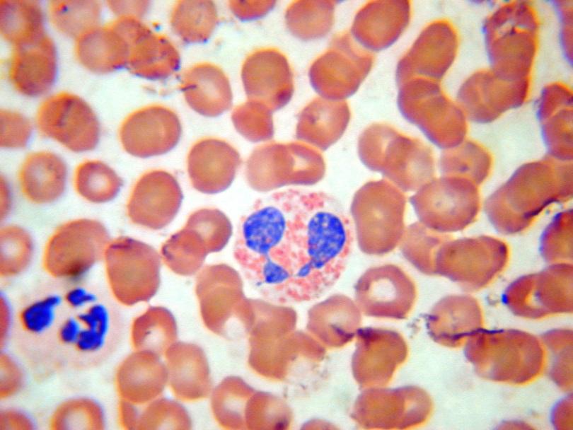 Эозинофилы повышены в крови у взрослого, что это значит