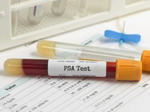 Норма и отклонения простатспецифический антигена (пса) в крови у мужчин разного возраста