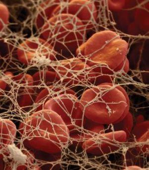Как повысить фибриноген в крови