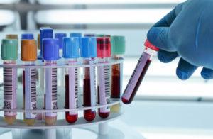 Ачтв (аптв): норма в анализе крови, повышен, понижен – причины