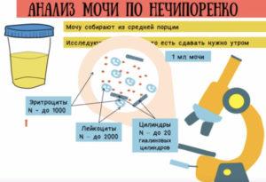 Анализ мочи по Нечипоренко – как собирать и сдавать: показания к проведению и подготовка к анализу